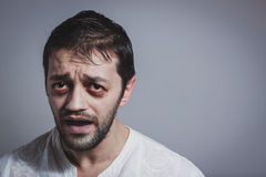 Homem farpado novo feio que olha doente fotografia de stock