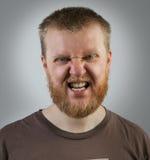Homem na cara da agressão Fotografia de Stock Royalty Free