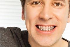 Homem novo com as cintas dentais em seus dentes Foto de Stock