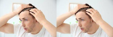 Homem novo com problema da queda de cabelo imagem de stock royalty free