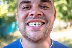 Homem novo com um dente lascado foto de stock