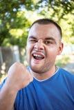 Homem novo com um dente lascado fotografia de stock royalty free