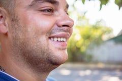 Homem novo com um dente lascado fotografia de stock
