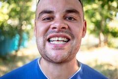 Homem novo com um dente lascado fotos de stock royalty free