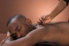 Homem novo que obtém o tratamento da acupuntura fotografia de stock