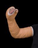Homem novo que veste um molde longo alaranjado da fibra de vidro do emplastro do braço Imagens de Stock