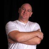 Homem principal raspado com olhar irritado na face Fotografia de Stock Royalty Free