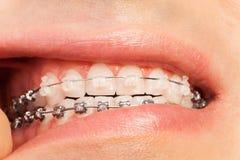 Homem que mostra a ortodontia e a correção da mordida fotos de stock