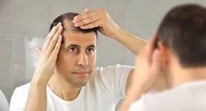 Homem que olha sua queda de cabelo foto de stock