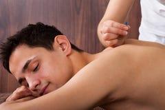 Homem que submete-se ao tratamento da acupuntura nos termas Fotos de Stock Royalty Free