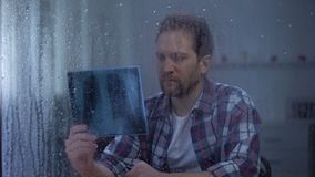 Homem triste que olha no raio X dos pulmões, doença fatal, nenhuma recuperação dianteira da esperança, dia chuvoso filme