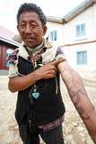 Homemade Tattoo in Falam, Myanmar (Burma) Stock Image