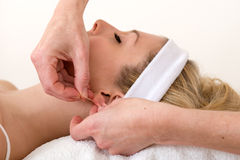 Homeopath applying an acupuncture needle on ear. Stock Photography