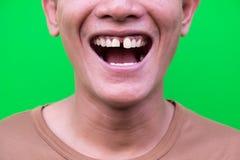 Homme asiatique souriant montrant ses dents sans attrait sur le fond vert Photos libres de droits
