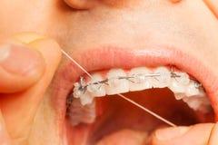 Homme avec des accolades sur des dents utilisant le fil dentaire Photo stock