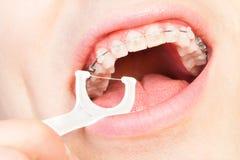 Homme avec des bagues dentaires flossing des dents Image stock