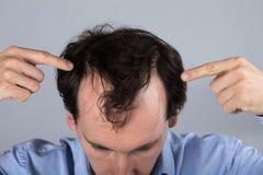 Homme avec des symptômes de perte des cheveux photos stock