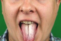 Homme avec la mauvaise haleine pour des albicans de candida sur la langue photographie stock