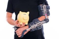 Homme avec le bras cassé Image stock