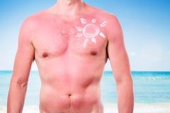 Homme avec un coup de soleil image stock