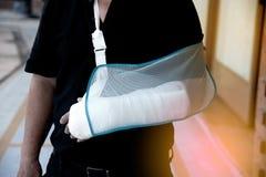 Homme avec un plâtre parce que bras cassé photo libre de droits