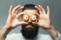 Homme barbu émotif avec des yeux d'oeufs Photographie stock libre de droits