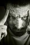 Homme bouleversé avec la peau criquée Image libre de droits