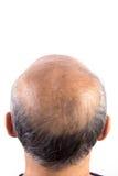 Homme chauve de perte des cheveux Photo libre de droits