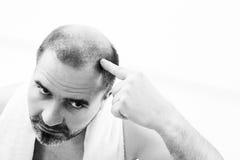 Homme d'une cinquantaine d'années concerné par fin d'alopécie de calvitie de perte des cheveux vers le haut de fond noir et blanc photographie stock libre de droits