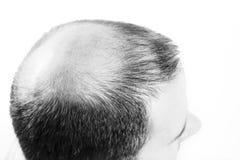 Homme d'une cinquantaine d'années concerné par l'alopécie de calvitie de perte des cheveux noire et blanche image libre de droits