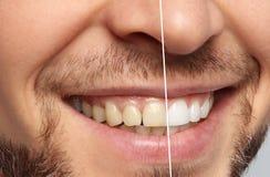 Homme de sourire avant et après des dents photo stock