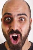 Homme drôle avec le œil au beurre noir images libres de droits
