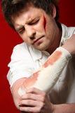 Homme en grande douleur ensuite dans la blessure Images libres de droits