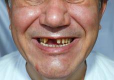 Homme laid avec le visage rayé par dents épluché Photographie stock libre de droits