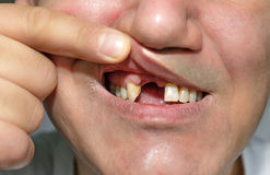 Homme montrant la bouche sans dents Photographie stock