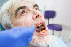 Homme plus âgé avec de mauvaises dents Photo libre de droits