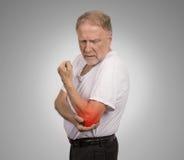 Homme supérieur avec l'inflammation rouge de coude souffrant de la douleur Image libre de droits
