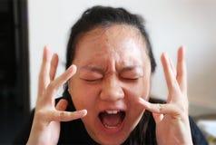 Hon frustreras om akne på hennes framsida- och suddighetsbakgrund och royaltyfri bild