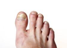 Hongo de la uña del pie Foto de archivo libre de regalías