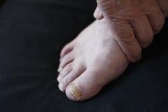 Hongo de la uña del pie en hombre foto de archivo