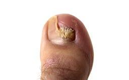 Hongo del uña del dedo del pie Fotografía de archivo