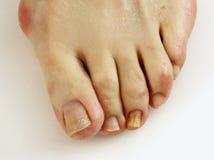 Hongo del uña del dedo del pie Imagen de archivo libre de regalías