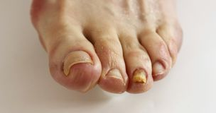 Hongo del uña del dedo del pie Imágenes de archivo libres de regalías