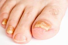 Hongo del uña del dedo del pie Foto de archivo