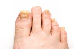 Hongo del uña del dedo del pie Foto de archivo libre de regalías