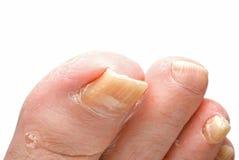 Hongo del uña del dedo del pie Fotos de archivo libres de regalías
