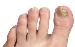 Hongo del uña del dedo del pie en la infección máxima Foto de archivo
