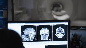Hoofd het aftastenproces van MRI De high-tech Medische Schermen met resultaten van Hersenenaftasten stock footage