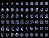 Hoofd MRI Royalty-vrije Stock Afbeelding