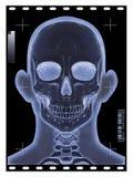 Hoofd Röntgenstraal stock illustratie